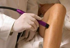 laser_treatment