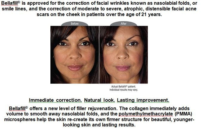 Bellafill for Correcting Wrinkles
