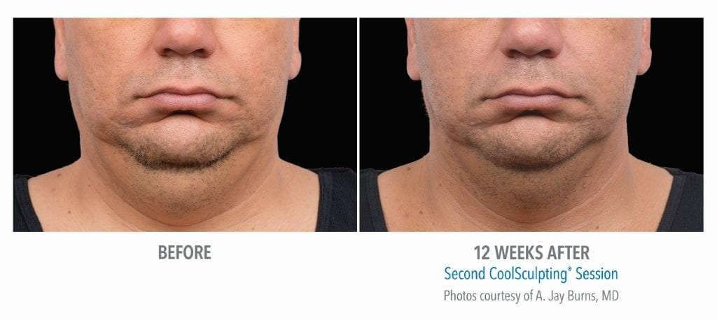 CoolSculpting Mini Before and After 2