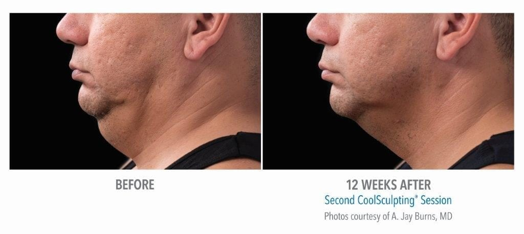 CoolSculpting Mini Before and After